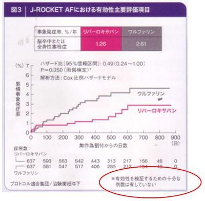 J-Rocket